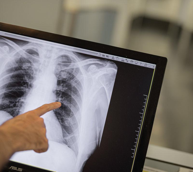Diagnostic per la imatge